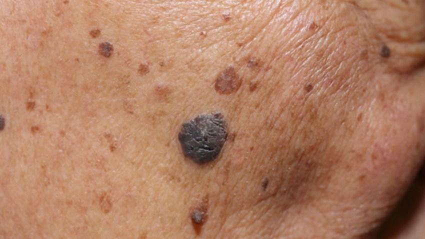 TLMD-lunar-melanoma-cancer-de-piel-shutterstock_265690370-portada