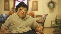 Se llama Joshua Reyes y de niño, se roció sin querer con gasolina. Aquí te contamos la inspiradora historia de 'Crispy'.