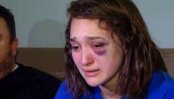 Atacan brutalmente a estudiante en tren del CTA