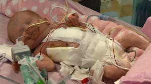 """""""Un milagro que esté viva"""": bebé con corazón fuera del pecho"""