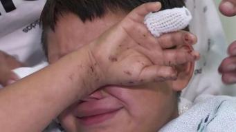 Niño pierde mano en explosión de fuego pirotécnico