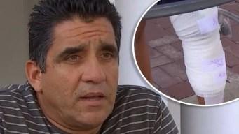 """""""Como una medusa"""": hispano sobrevive ataque de tiburón"""