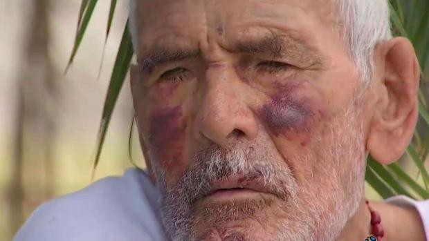[TLMD - LA] Arrestan a la mujer que golpeó brutalmente con un ladrillo a un abuelito