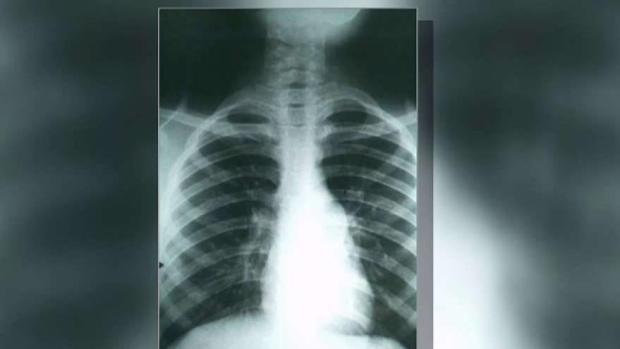 Se disparan casos de la llamada ''fiebre del valle''