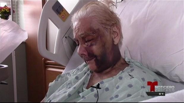 Abuela golpeada le envía fuerte mensaje a su agresor