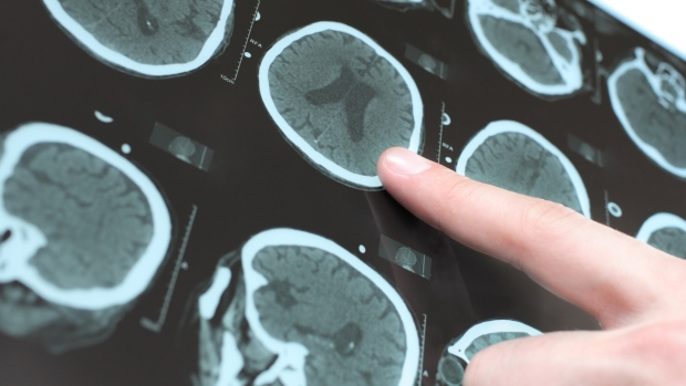 Qué es la enfermedad de Parkinson y cómo te afecta