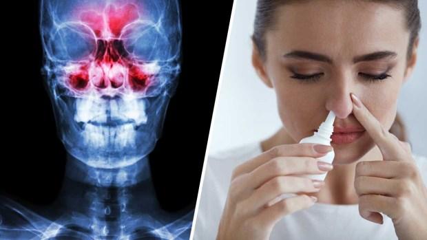 Lo que parecía un simple resfriado era una sinusitis crónica