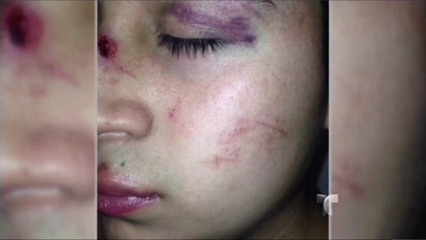 Video: Mexicano azotado en pleito con policías