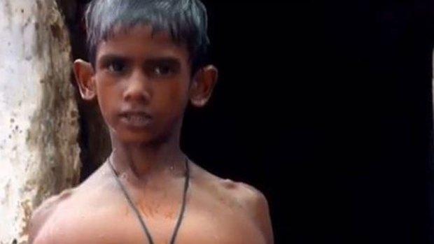 Video: El horror del niño de manos gigantes