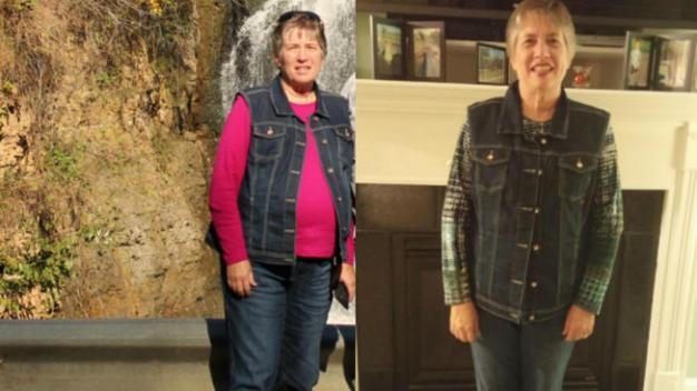 Una mujer tenía un tumor de 20 libras en el estómago