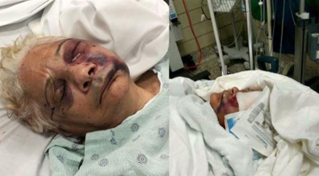 Agreden salvajemente a una mujer de 78 años en Chicago
