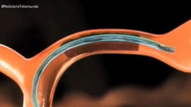 Novedoso procedimiento en infartos cerebrales