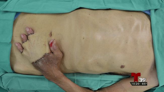 Doctor cose la mano de un hombre a su abdomen
